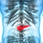 Israel Medicina: Nanomedicina podría prevenir progresión de cáncer de páncreas