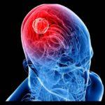 Científicos israelíes desarrollan tratamiento pionero para cáncer cerebral agresivo