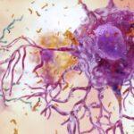 Una pequeña luz de esperanza israelí contra el mal de Alzheimer